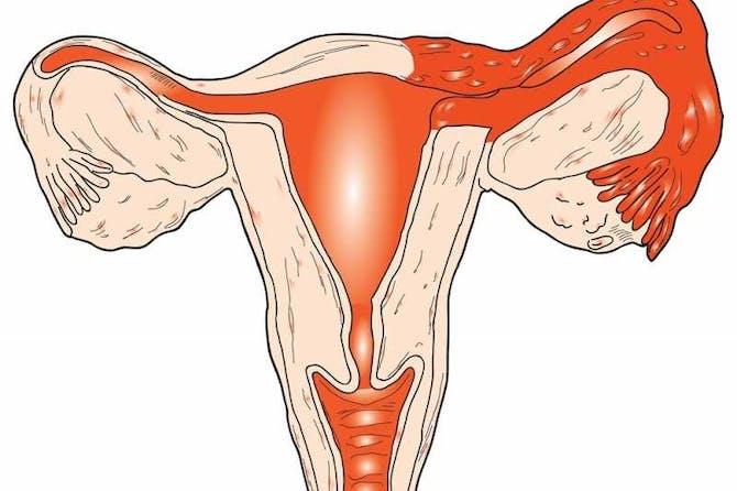 التهابات الرحم الأسباب الأعراض والعلاج طب تايم