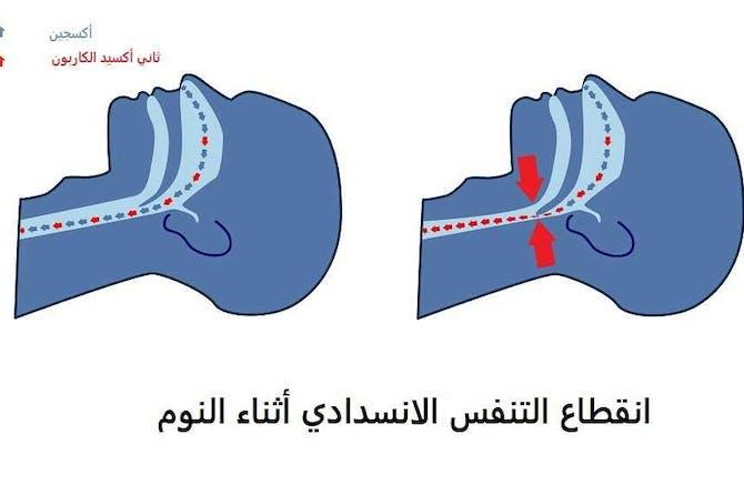 رد: يا اخوان وش الحل مع انقطاع التنفس بداية النوم