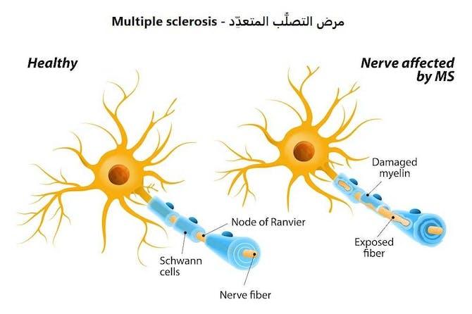 مرض التصلب المتعدد Multiple Sclerosis طب تايم